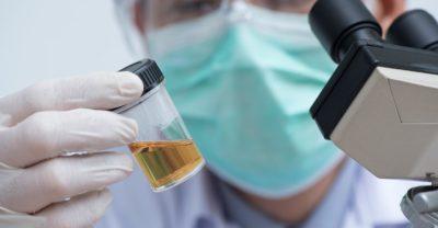 How To Pass A Drug Test: Urine, Saliva, Hair, Blood